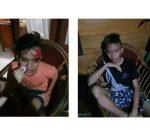 Sempat Disekap di Mobil, Kasus Penganiayaan Dua Anak Dibawah Umur Dilapor ke Polsek Lolayan