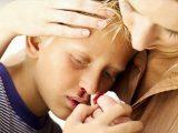 Tips Mengenal dan Menangani Sakit Mimisan