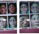 Kasus Penganiayaan Sarini Wilar, Terlapornya FAI alias Fitri Sedang Berproses di Meja Penyidik