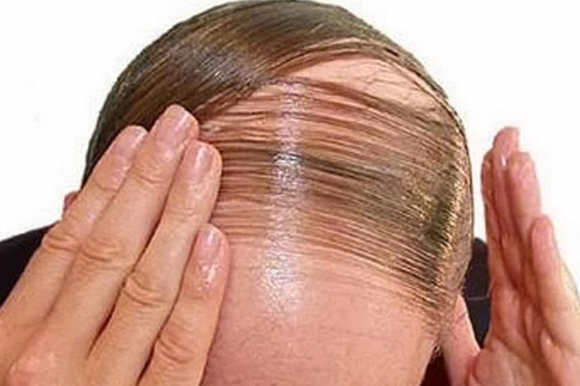 14 Tips Mengatasi Kebotakan Rambut di Kepala Anda